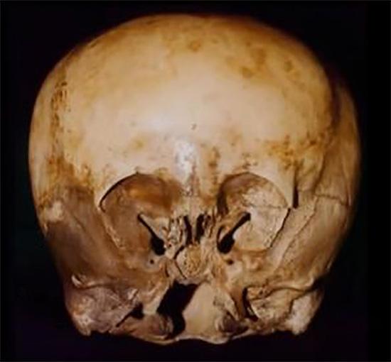 スターチャイルドの頭蓋骨